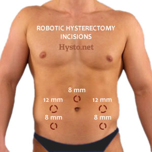 Laparoscopic hysterectomy with vaginal assistance